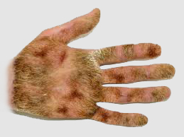 hairy hand case contracts best porno