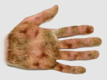 hairyhand